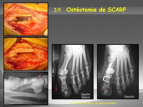 L'ostéotomie métatarsienne de scarf