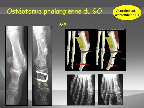 L'ostéotomie de réaxation du gros orteil