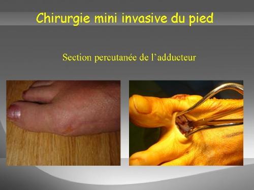 Section du tendon adducteur