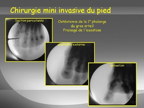 Ostéotomie du gros orteil
