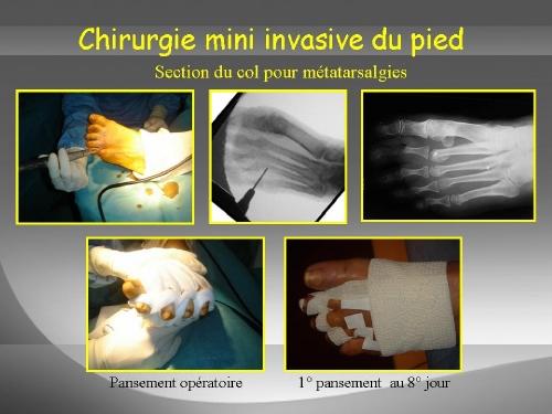 Ostéotomies des métatarsiens latéraux