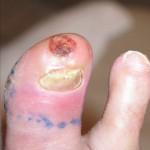 Lésion cutanée du gros orteil avec inflammation périphérique