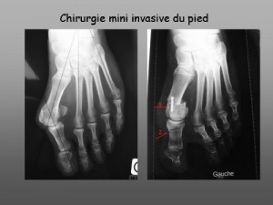 Chirurgie mini invasive du pied